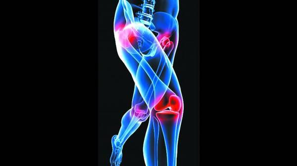 arthrose hanche cruralgie