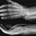 Acheter Articulation douleur huile essentielle | Flexa Plus Optima - Qualité Prix
