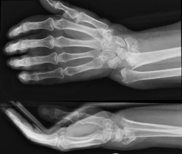 soulager l'arthrose sans médicaments marie borrel