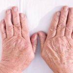 Acheter Arthrose genou quel traitement | Flexa Plus Optima - Qualité Prix