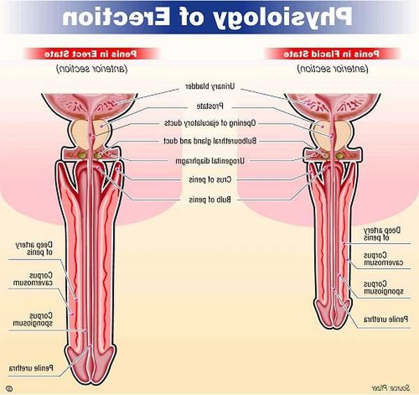 dysfonctions érectiles : différents types et traitements