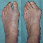 Hallu Forte - Dr Hubert Lemoine chirurgien du pied | clinique | Avis des testeurs