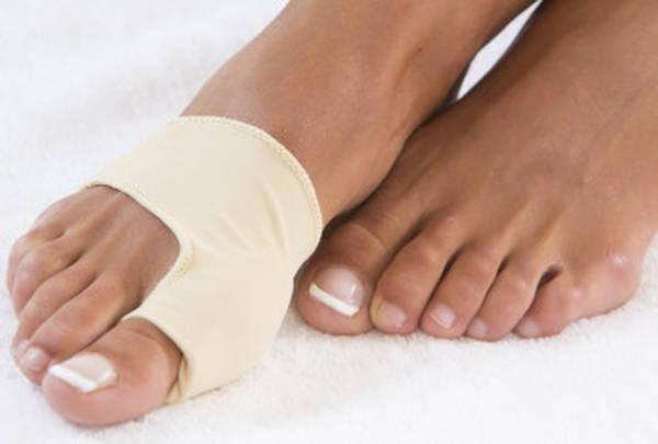 traitement hallux valgus, metatarsalgie, orteils en griffe