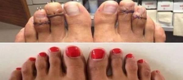 chaussure femme pour pieds sensibles hallux valgus