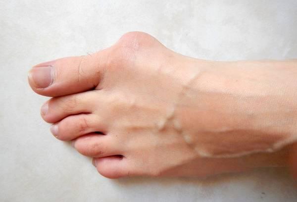 traitement de l'hallux valgus basé sur l'évidence - revue