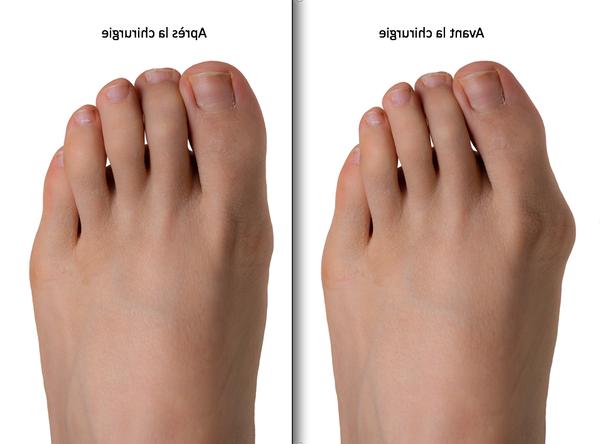 traitement podologique permet de redresser l'orteil pour hallux valgus