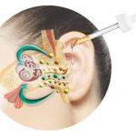 Découvrez soin: Appareil auditif marseille | Promotion en cours